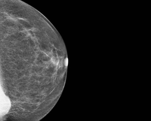 Bild zum Artikel Brustkrebs: Alkohol & Übergewicht schlecht für die Prognose